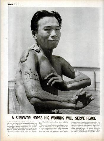 If these descriptions of suffering were unable to make Americans query the morality of its weapon, two years later, in 1947, Life magazine printed a photograph of a Hiroshima survivor, his skin badly